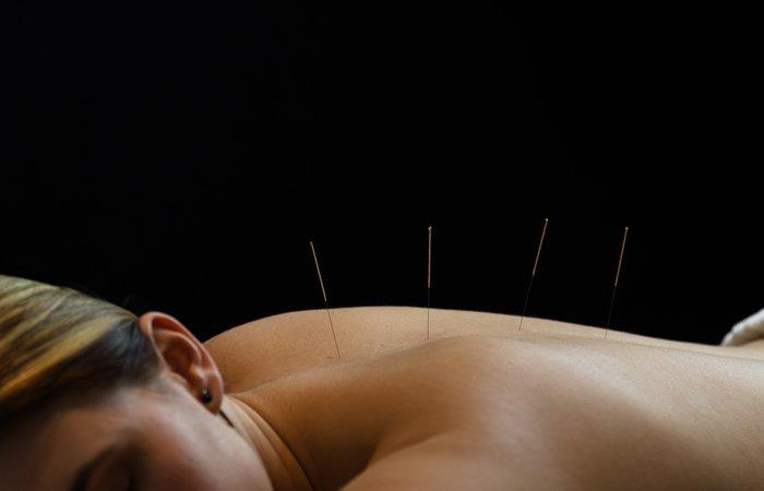 acupuncture_2